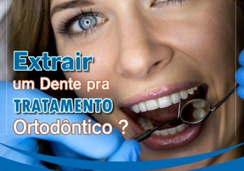 Extrair Dente para Tratamento?