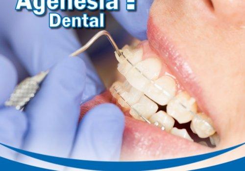 Sabe o Que é Agenesia Dental?