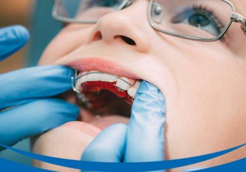 Dente Supranumerário