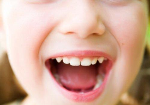 Caiu e Quebrou o Dente?