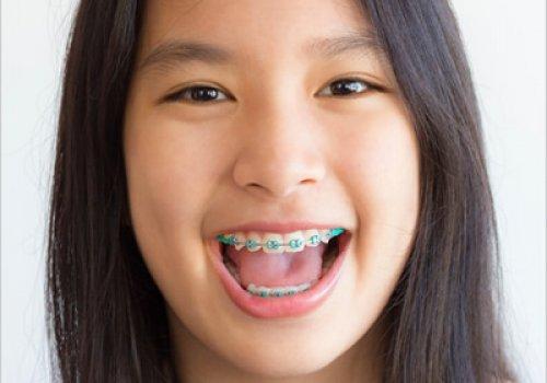 Limpar os dentes Evita as Cáries?