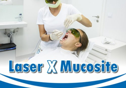 Laser x Mucosite